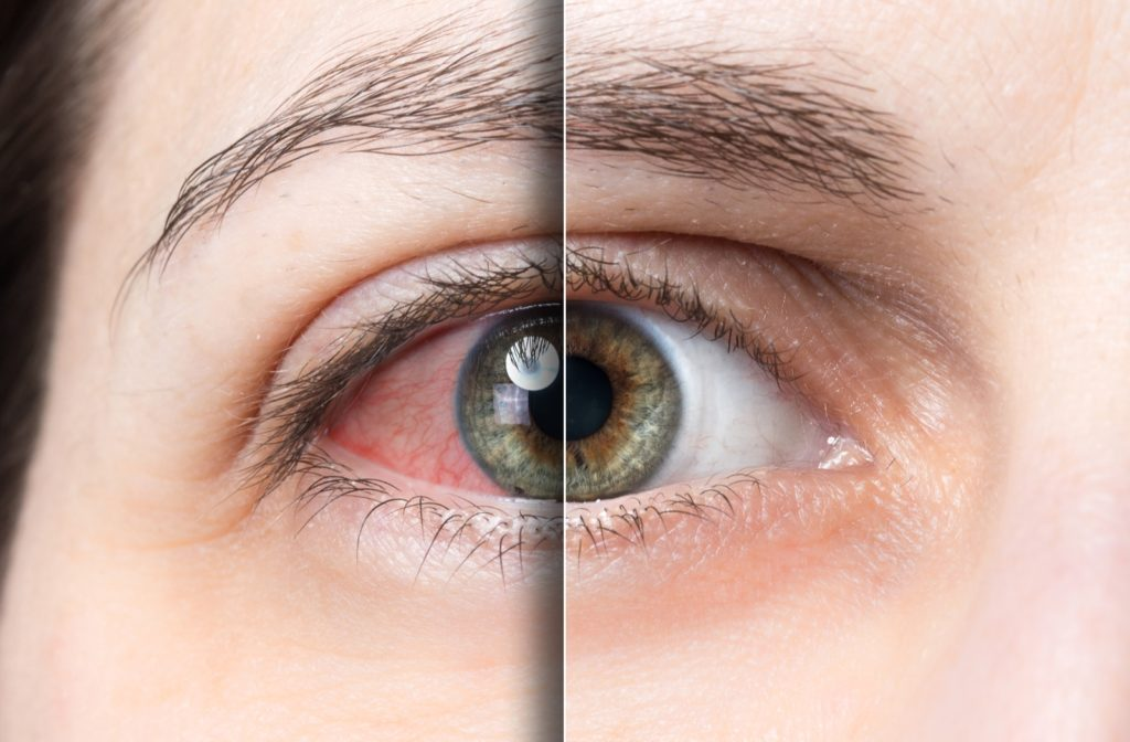 The before and after of dry eye treated by intense pulsed light therapy