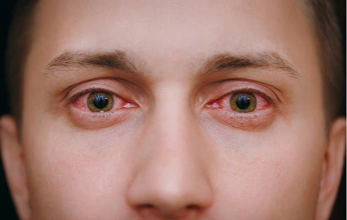 A person suffering from Viral Conjunctivitis that has spread to both eyes making them pink and swollen