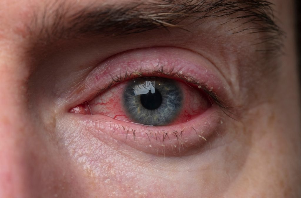 A close up of a man's eye who is suffering from Bacterial Conjunctivitis (Pink Eye)
